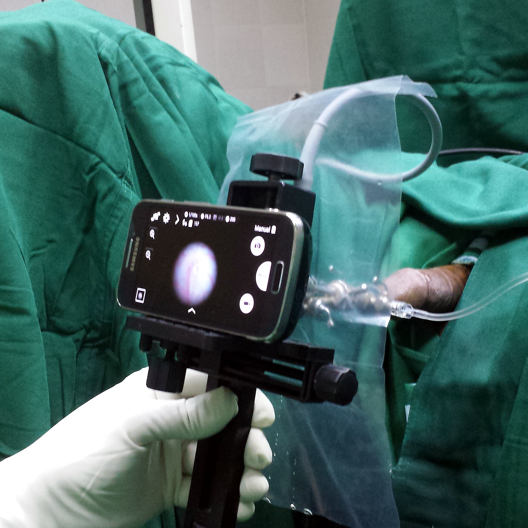 Video Cystourethroscopy using an Android Smartphone and a rigid cystourethroscope