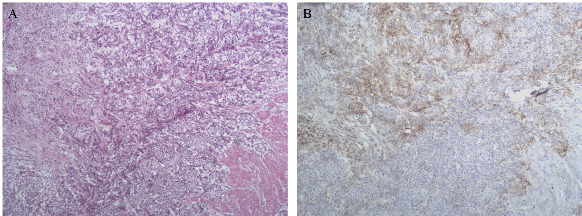 Fig 3. A. HE showed that the proportion of tumor cells in the microscope field is 40%. B. Immunohistochemistry(IHC) showed that PD-L1 percentage scoring of tumor cells and tumor-infiltrating immune cells was 2 (15-25%) and 2(5-10%), respectively