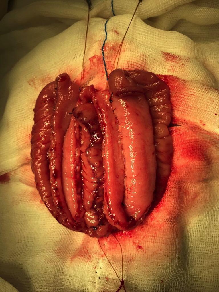 Two serosal trough created after suturing both lateral limb and then incising ileum at anti-mesenteric border